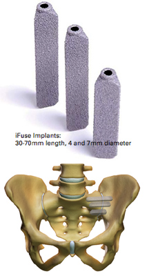 Sacroiliac Joint Amp Low Back Pain Si Joint Fusion