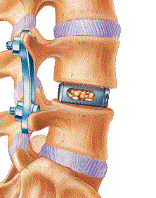 Lateral Lumbar Interbody Fusion Spine Surgery